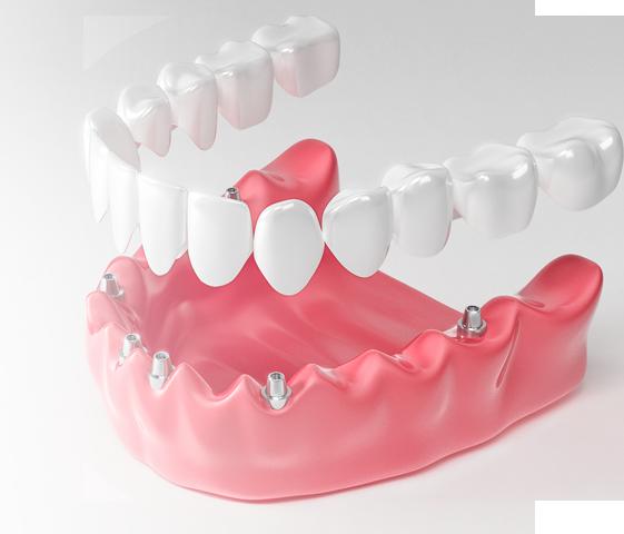 Передние зубы выдвинулись вперед